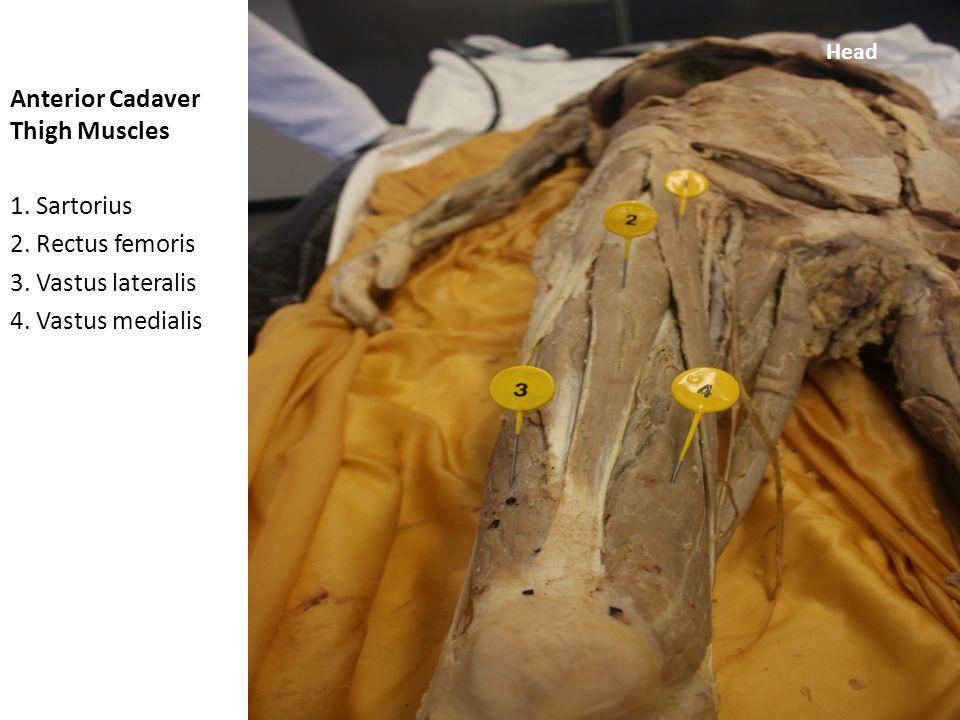 quadratus femoris cadaver - photo #7