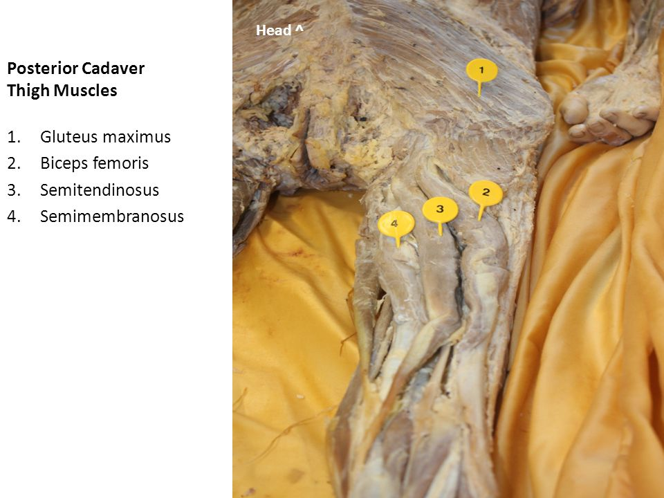 Posterior Cadaver Thigh Muscles