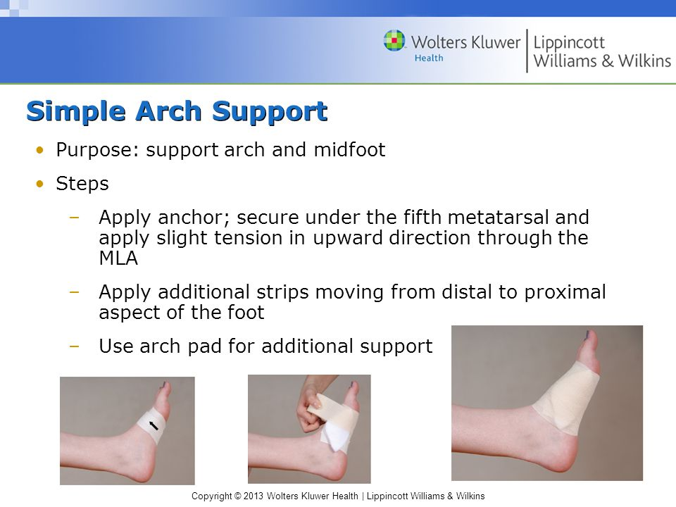 Simple Arch Support Purpose: support arch and midfoot Steps