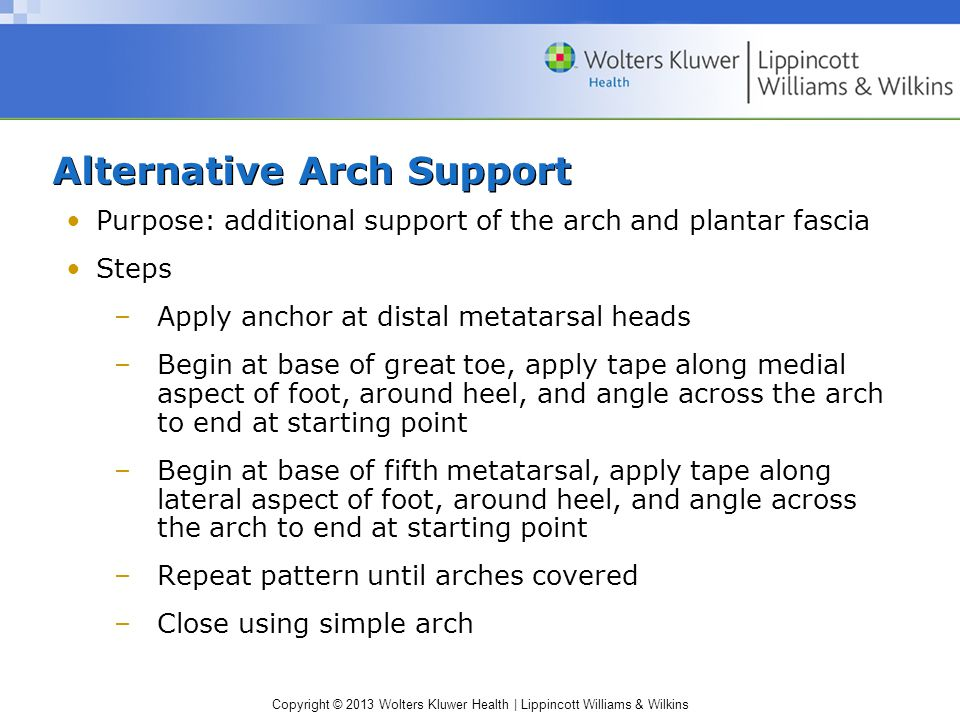Alternative Arch Support