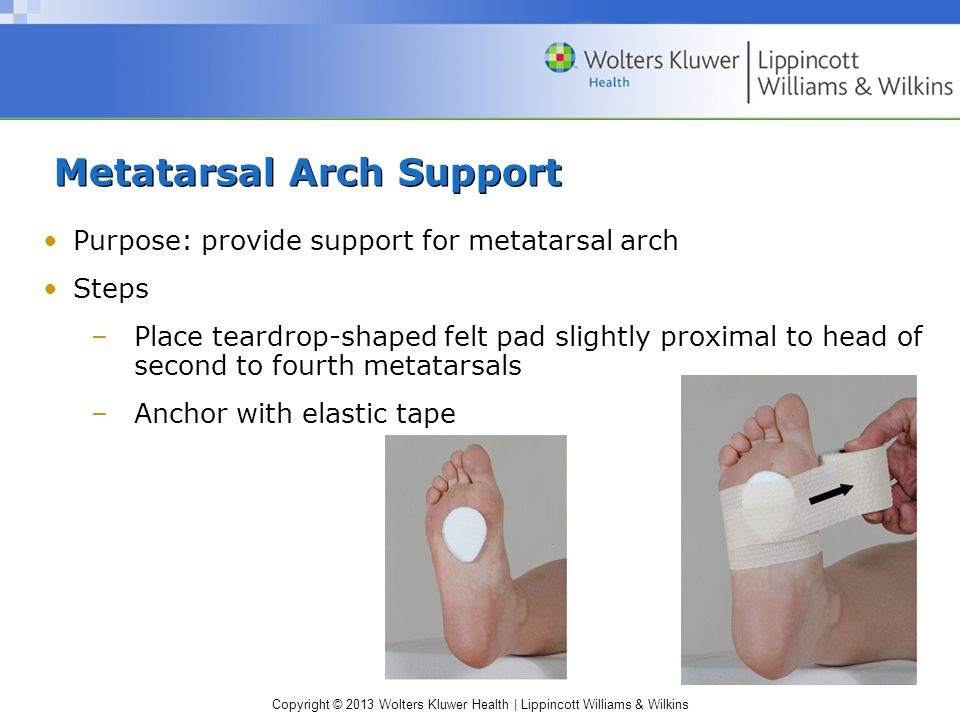 Metatarsal Arch Support
