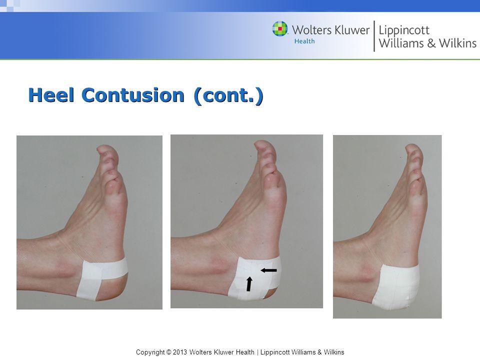 Heel Contusion (cont.)