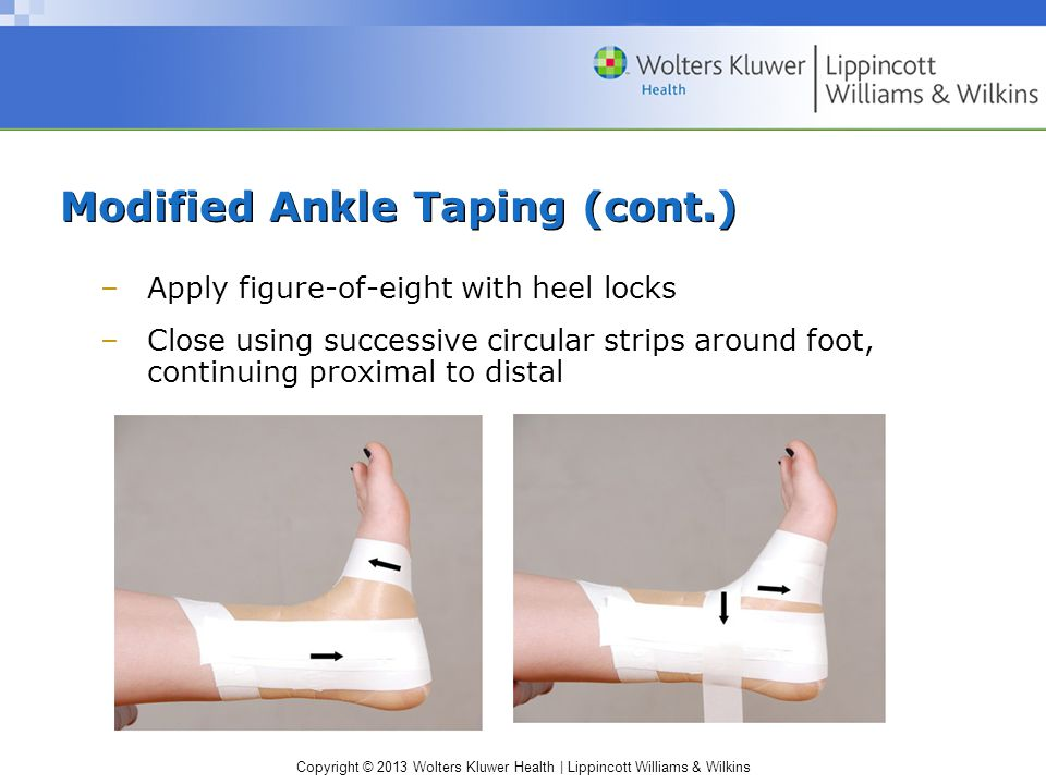 Modified Ankle Taping (cont.)