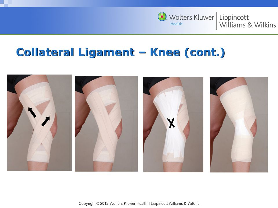 Collateral Ligament – Knee (cont.)