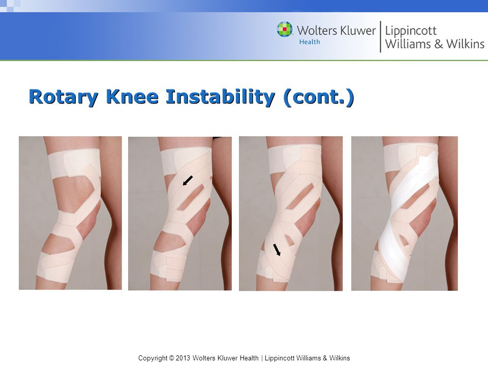 Rotary Knee Instability (cont.)
