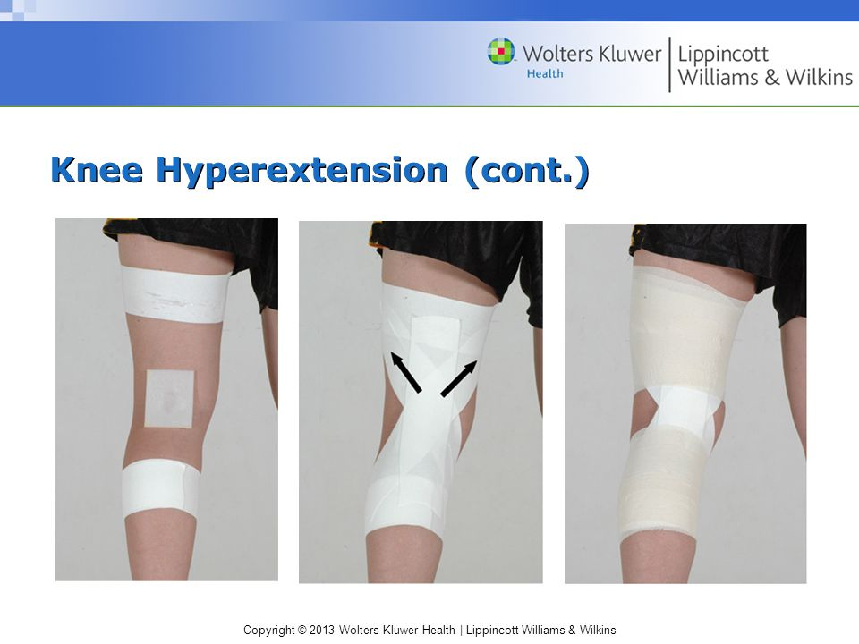 Knee Hyperextension (cont.)