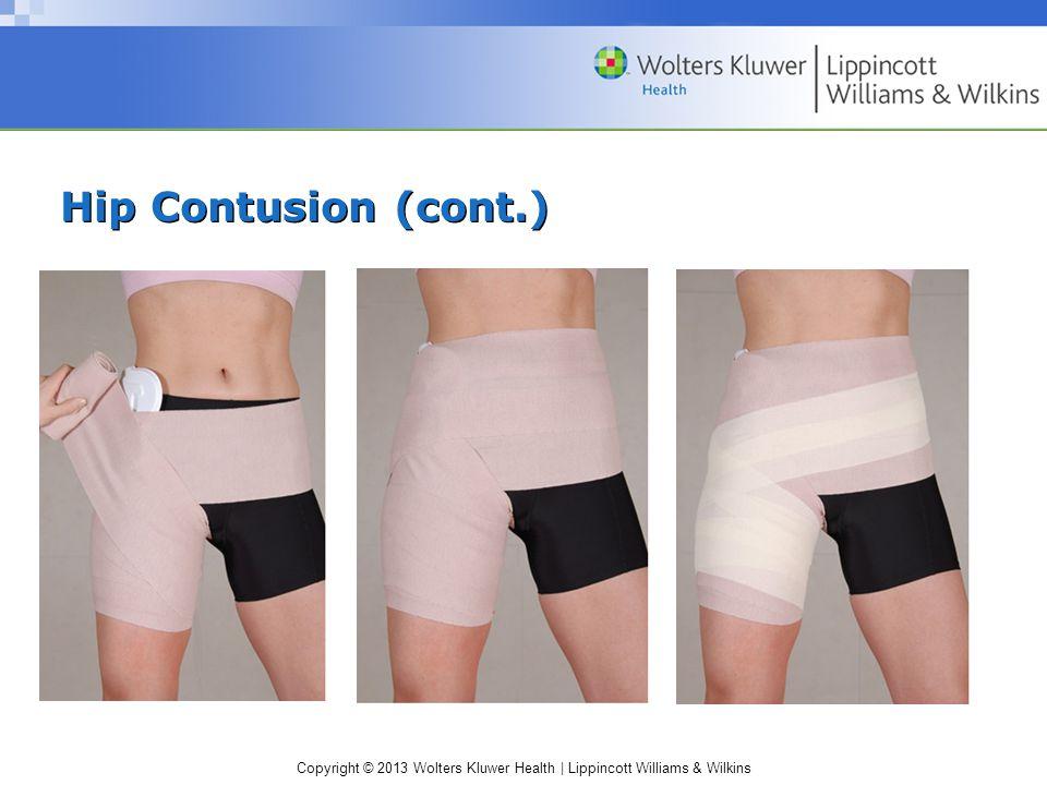 Hip Contusion (cont.)