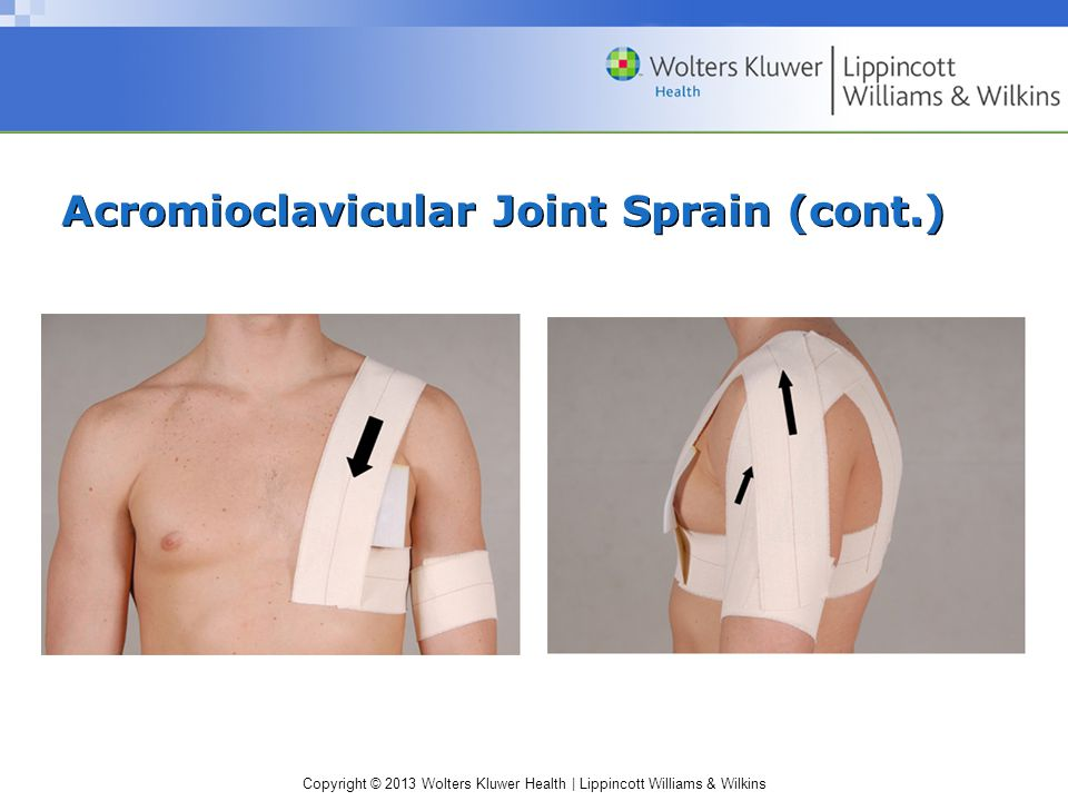 Acromioclavicular Joint Sprain (cont.)
