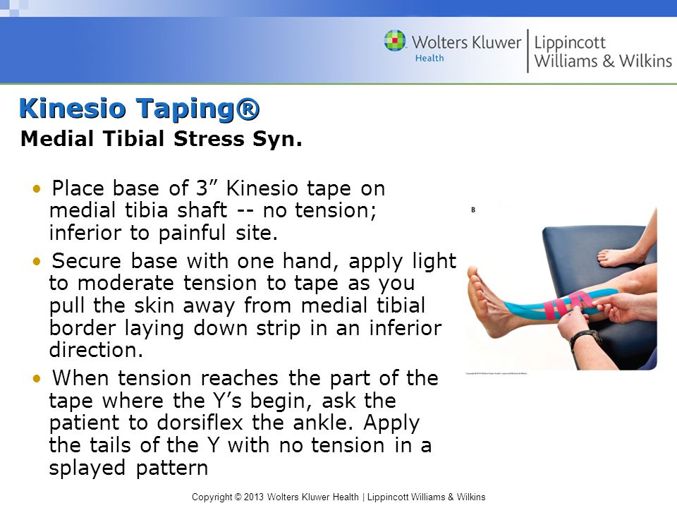 Kinesio Taping® Medial Tibial Stress Syn.