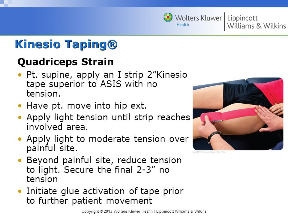 Kinesio Taping® Quadriceps Strain