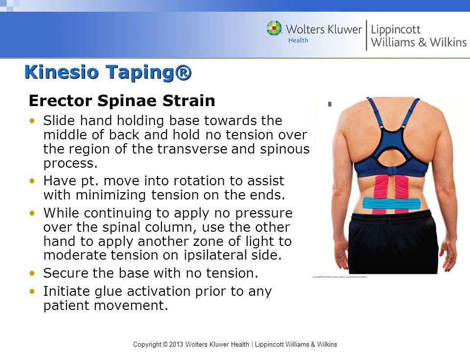 Kinesio Taping® Erector Spinae Strain