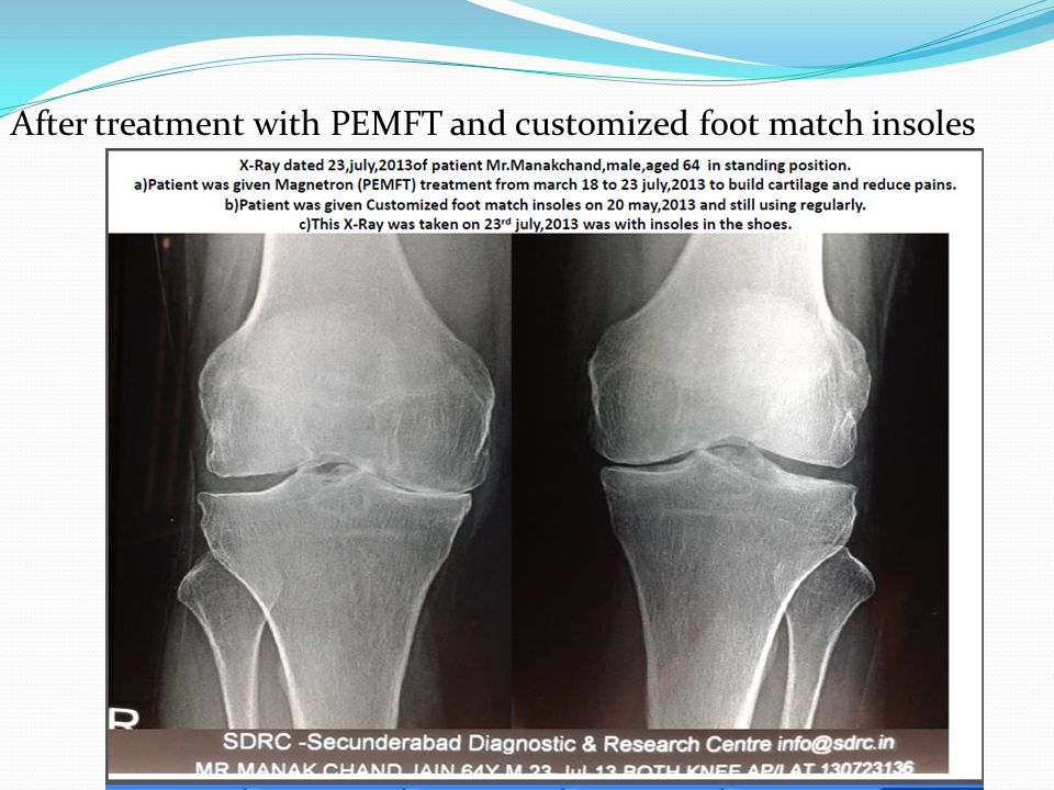After treatment with PEMFT and customized foot match insoles