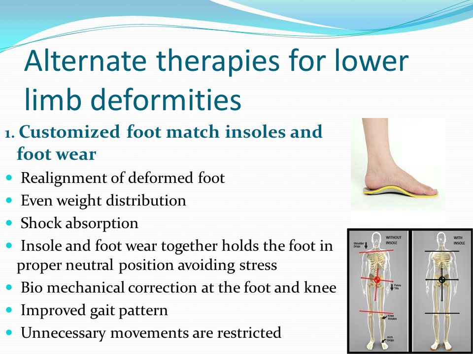 Alternate therapies for lower limb deformities