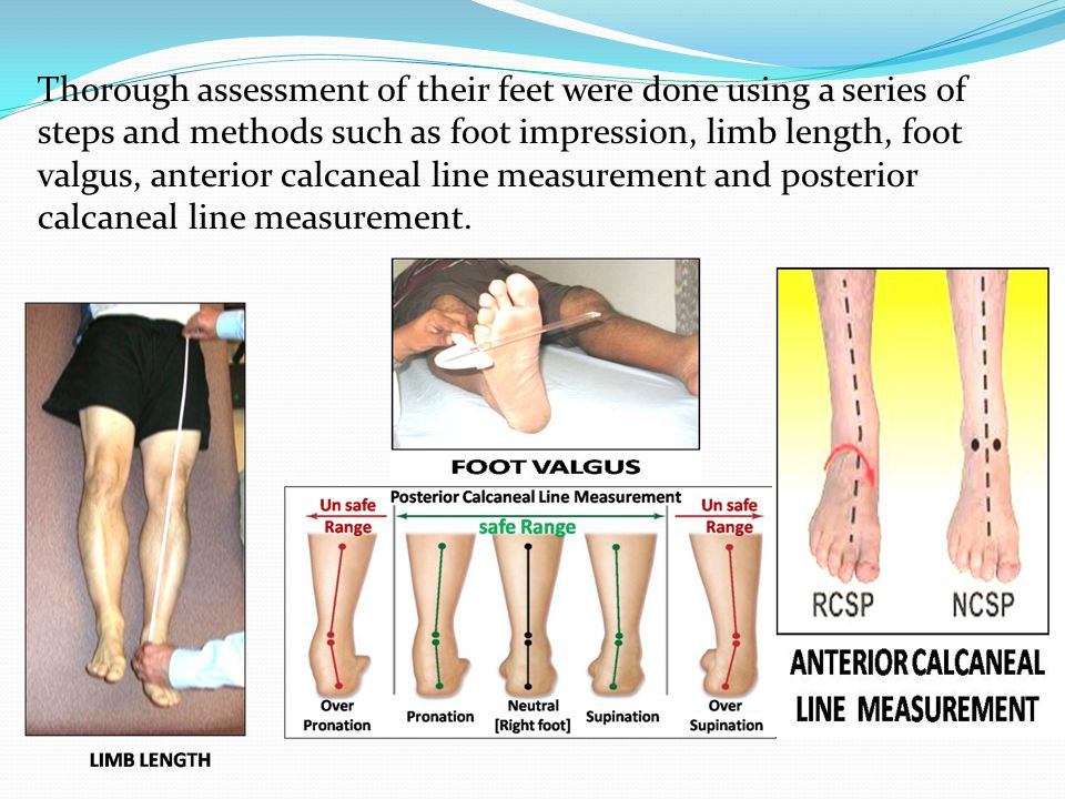 Thorough assessment of their feet were done using a series of steps and methods such as foot impression, limb length, foot valgus, anterior calcaneal line measurement and posterior calcaneal line measurement.
