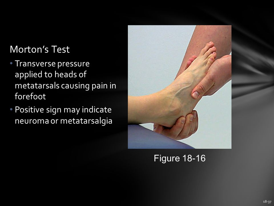 Morton's Test Transverse pressure applied to heads of metatarsals causing pain in forefoot. Positive sign may indicate neuroma or metatarsalgia.