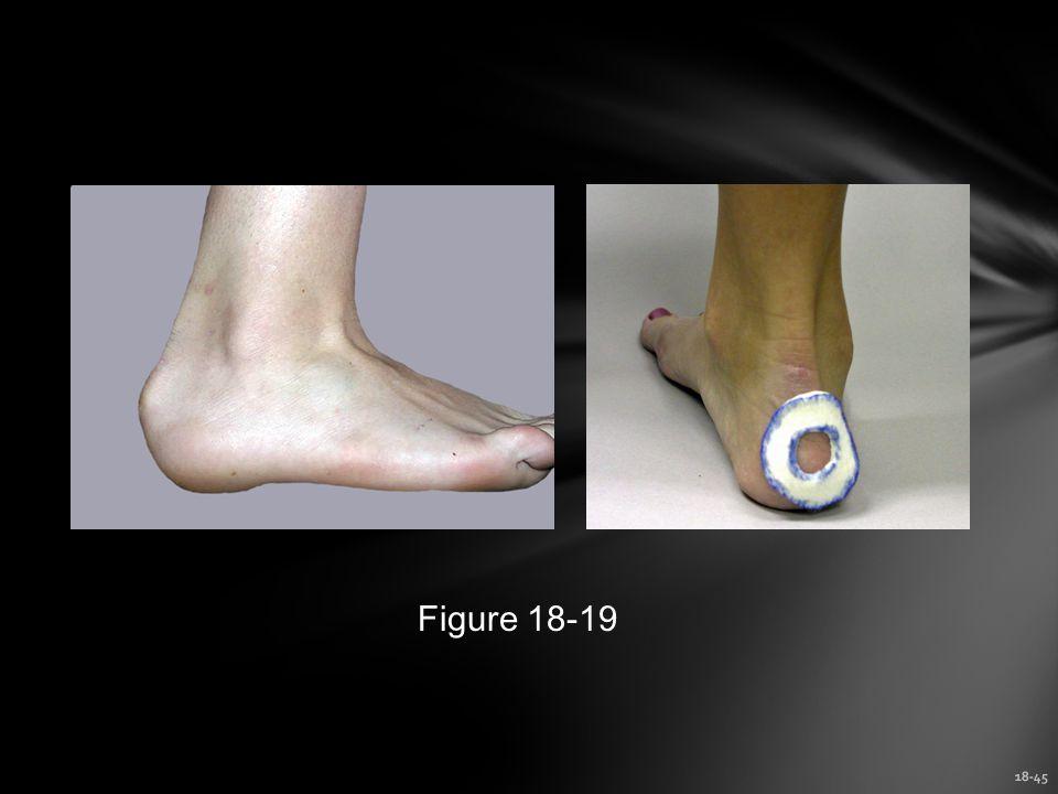Figure 18-19