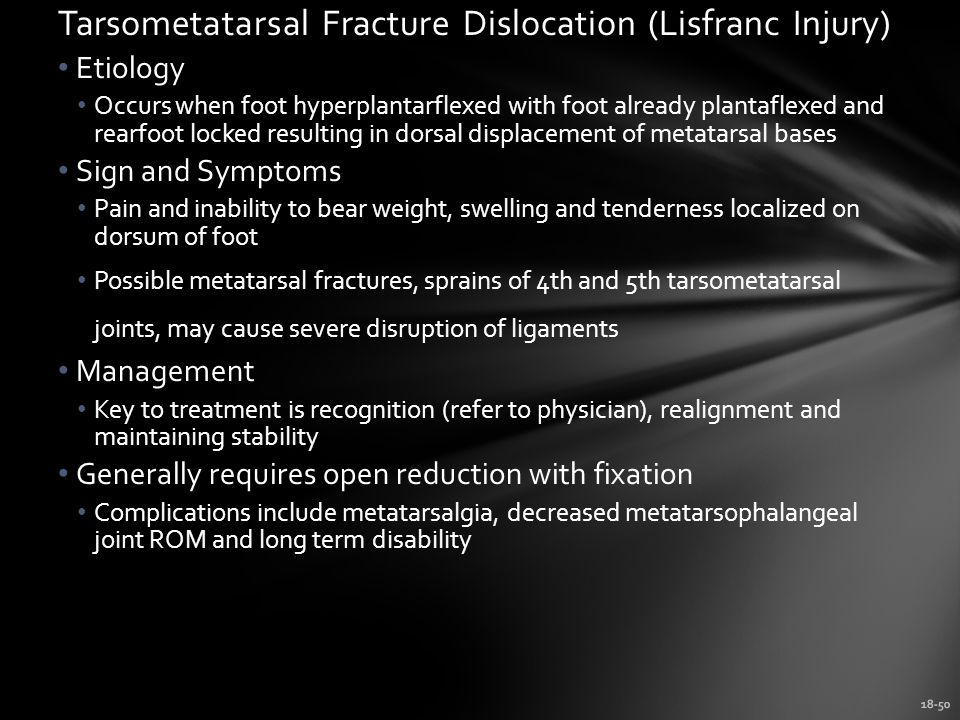 Tarsometatarsal Fracture Dislocation (Lisfranc Injury)