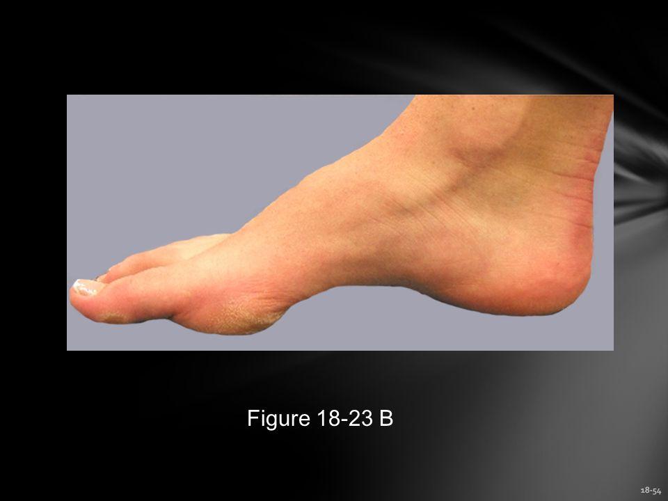 Figure 18-23 B