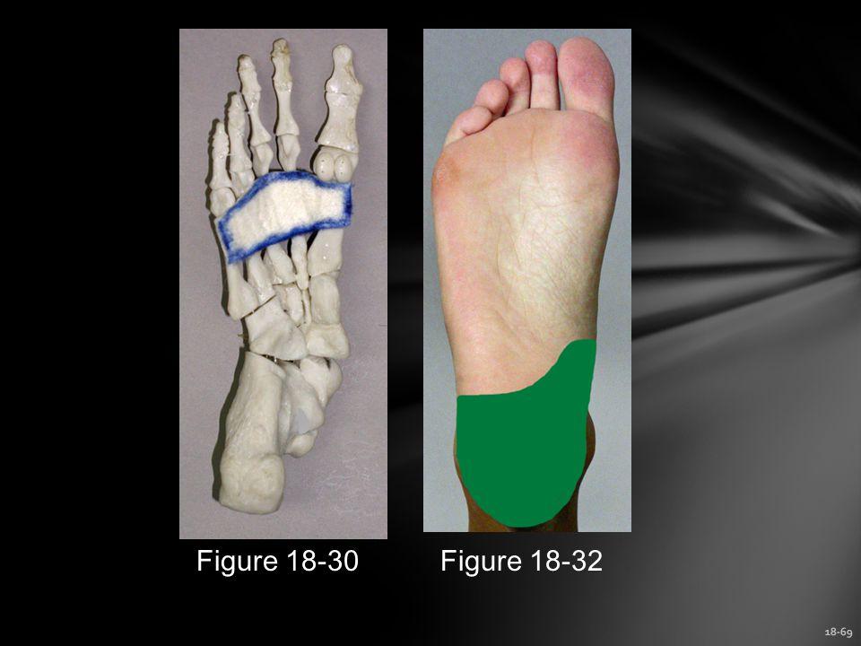 Figure 18-30 Figure 18-32