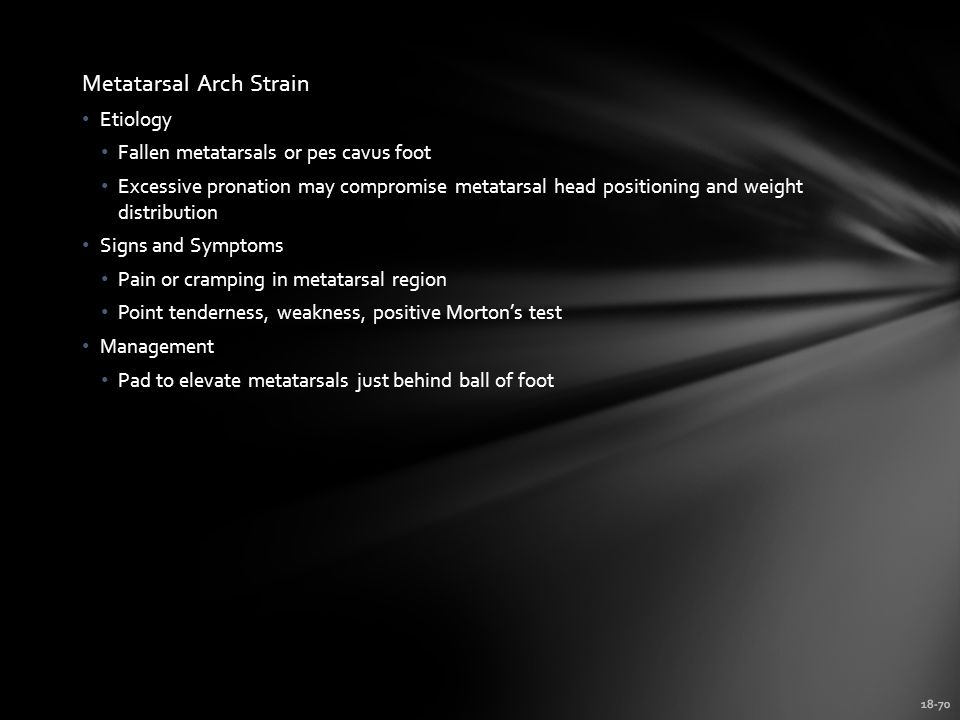 Metatarsal Arch Strain