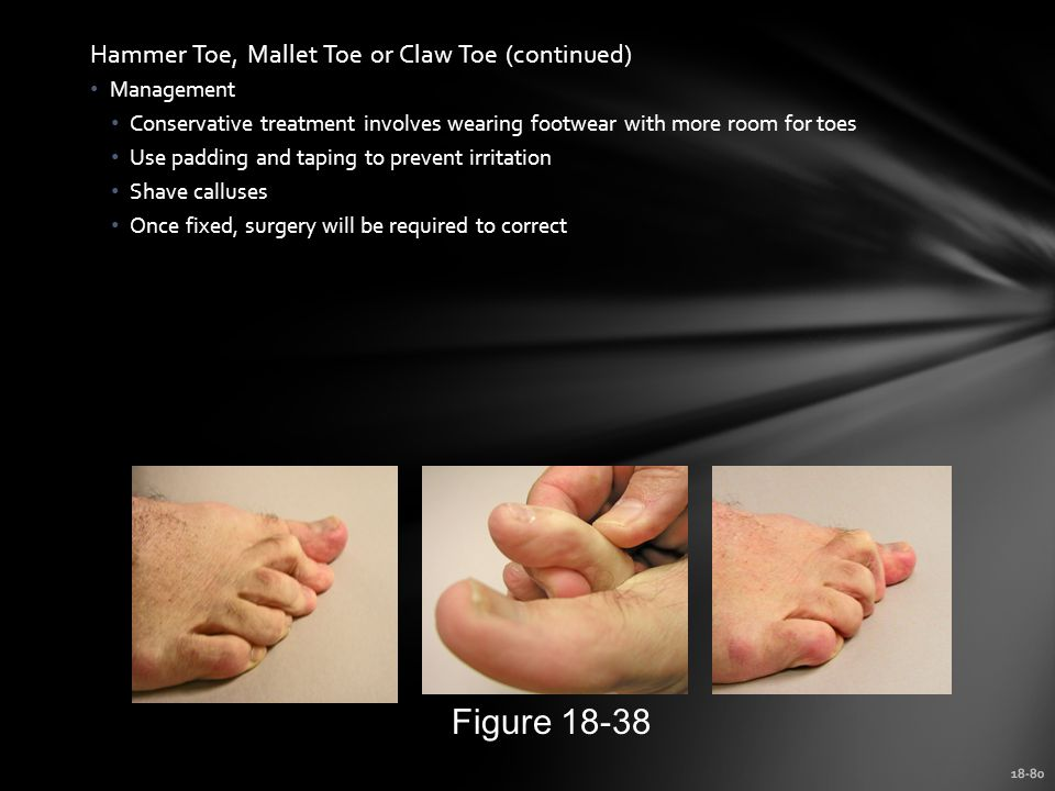 Figure 18-38 Hammer Toe, Mallet Toe or Claw Toe (continued) Management