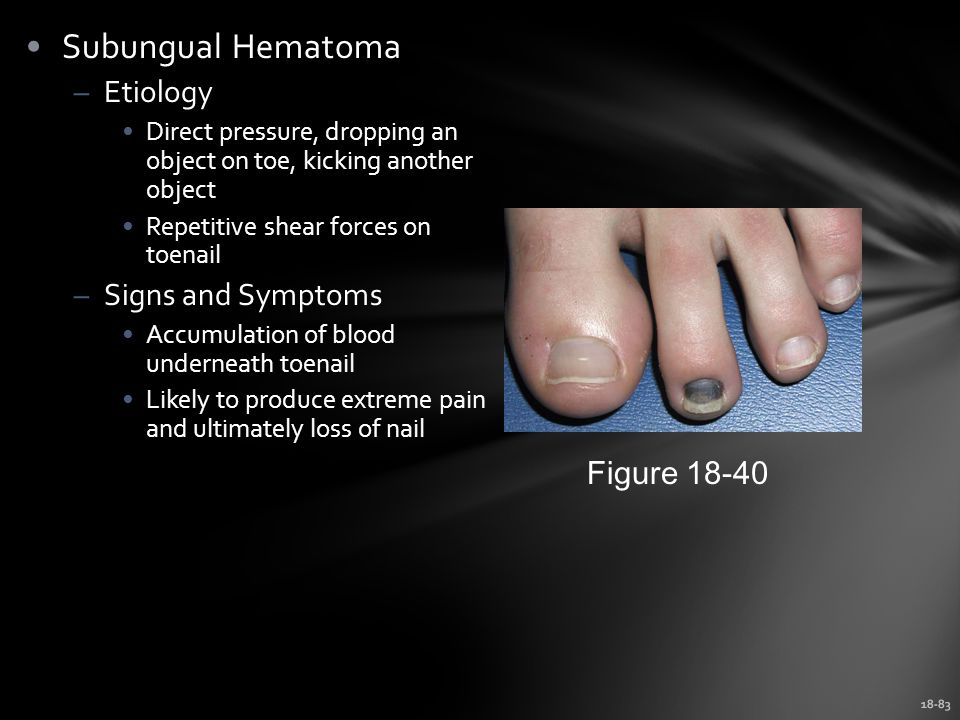Subungual Hematoma Etiology Signs and Symptoms Figure 18-40