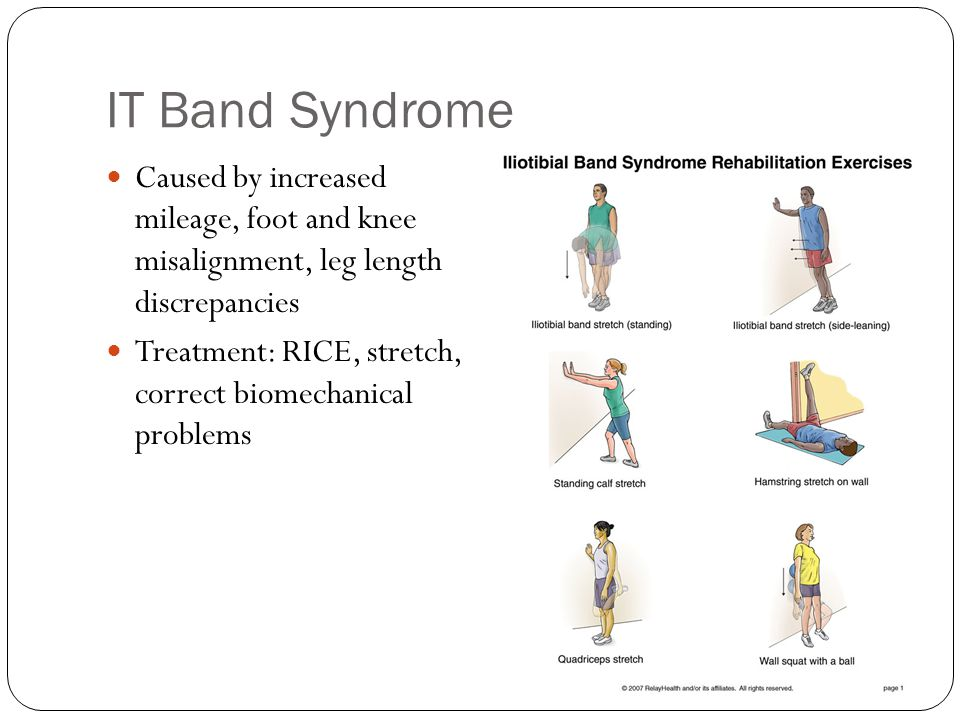 IT Band Syndrome Caused by increased mileage, foot and knee misalignment, leg length discrepancies.