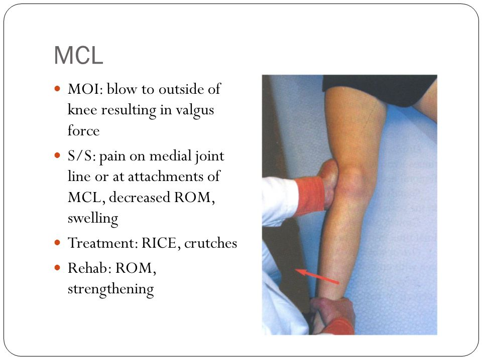 MCL MOI: blow to outside of knee resulting in valgus force