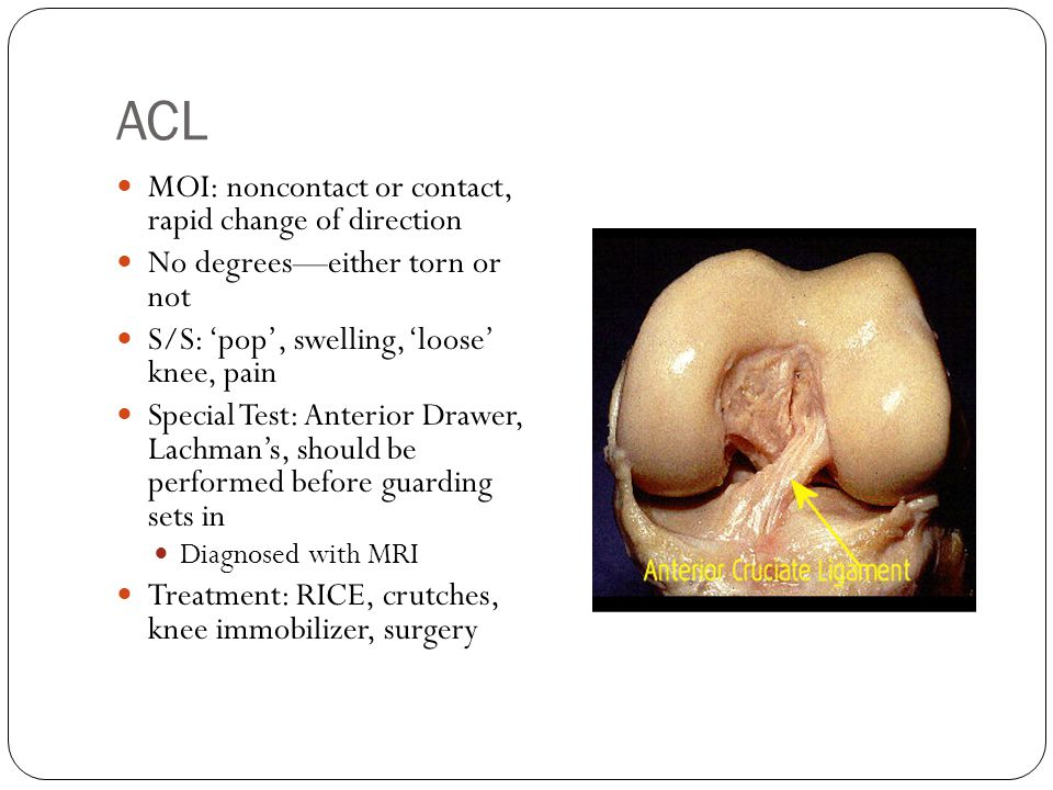 ACL MOI: noncontact or contact, rapid change of direction