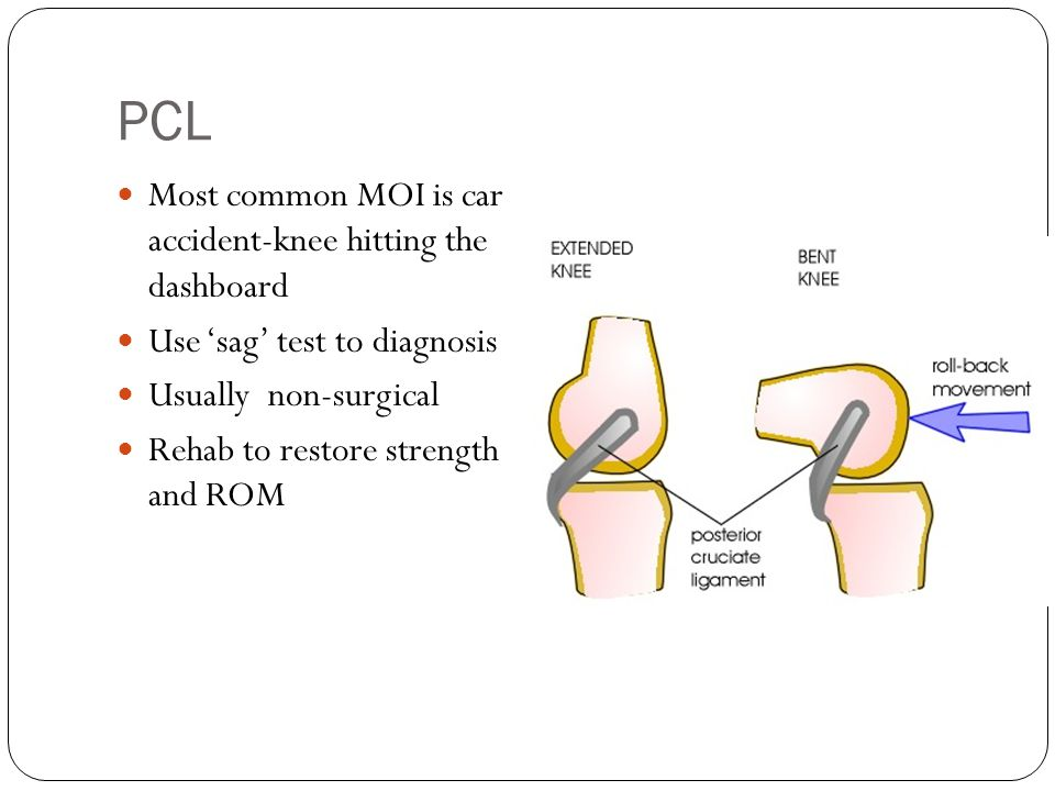 PCL Most common MOI is car accident-knee hitting the dashboard