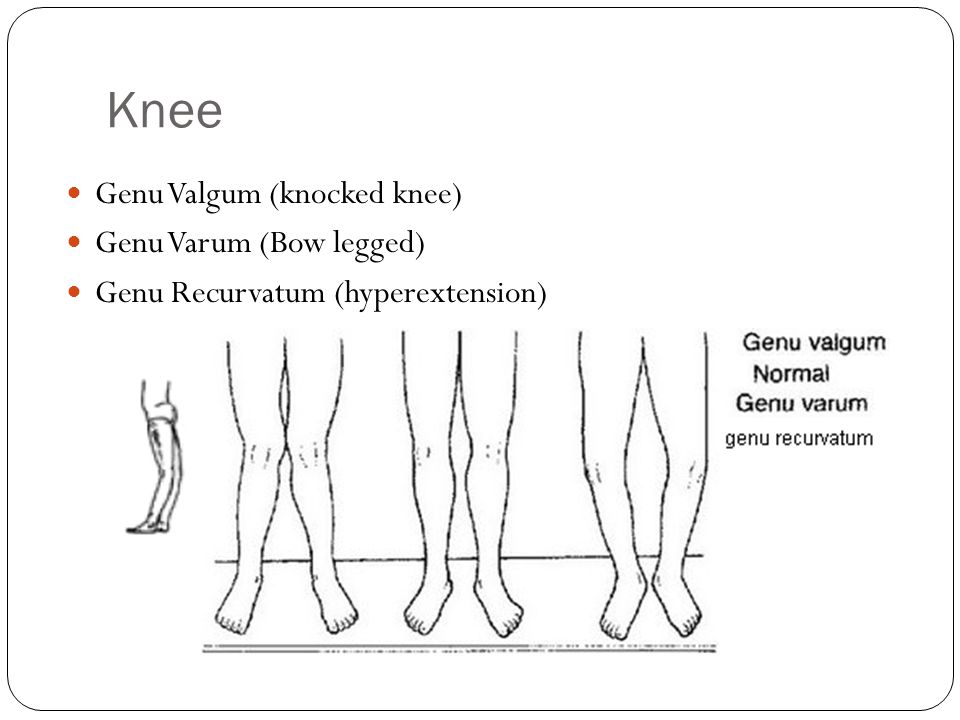 Knee Genu Valgum (knocked knee) Genu Varum (Bow legged)