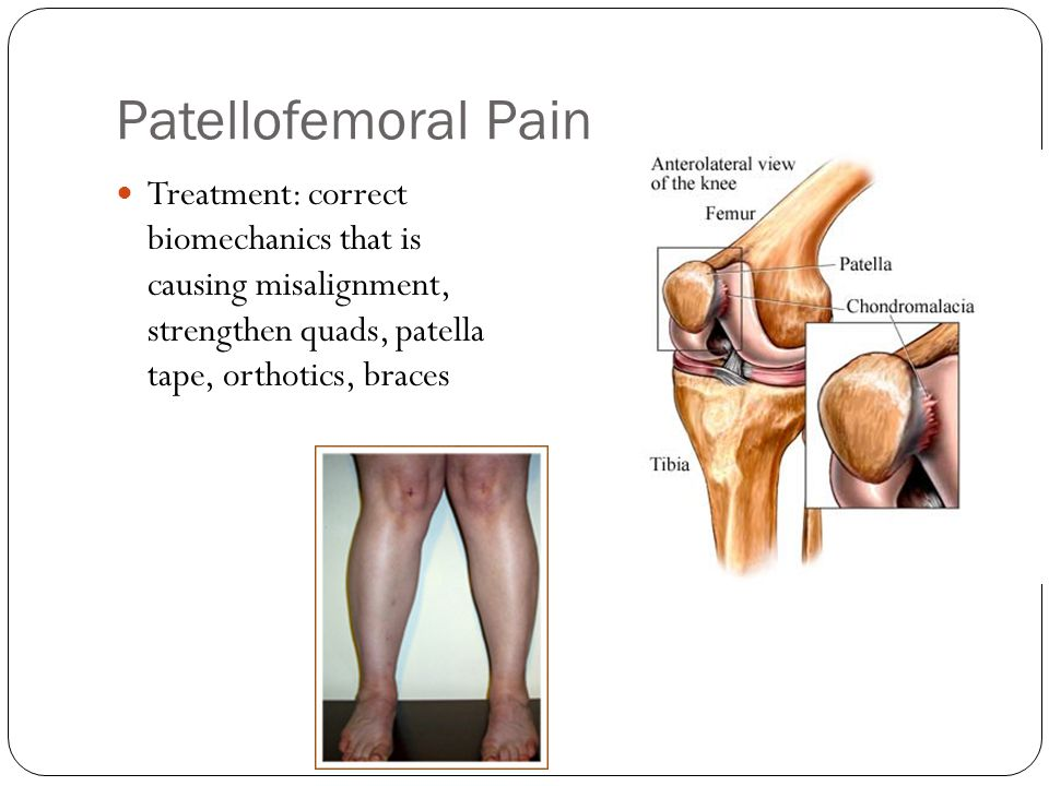 Patellofemoral Pain Treatment: correct biomechanics that is causing misalignment, strengthen quads, patella tape, orthotics, braces.