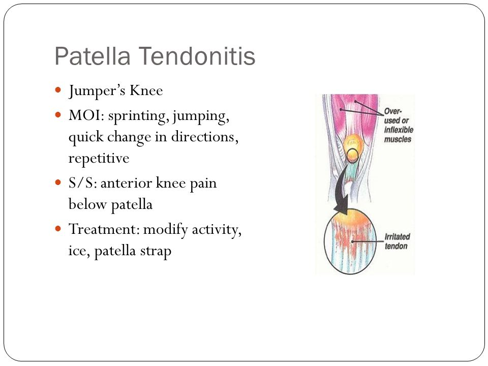 Patella Tendonitis Jumper's Knee