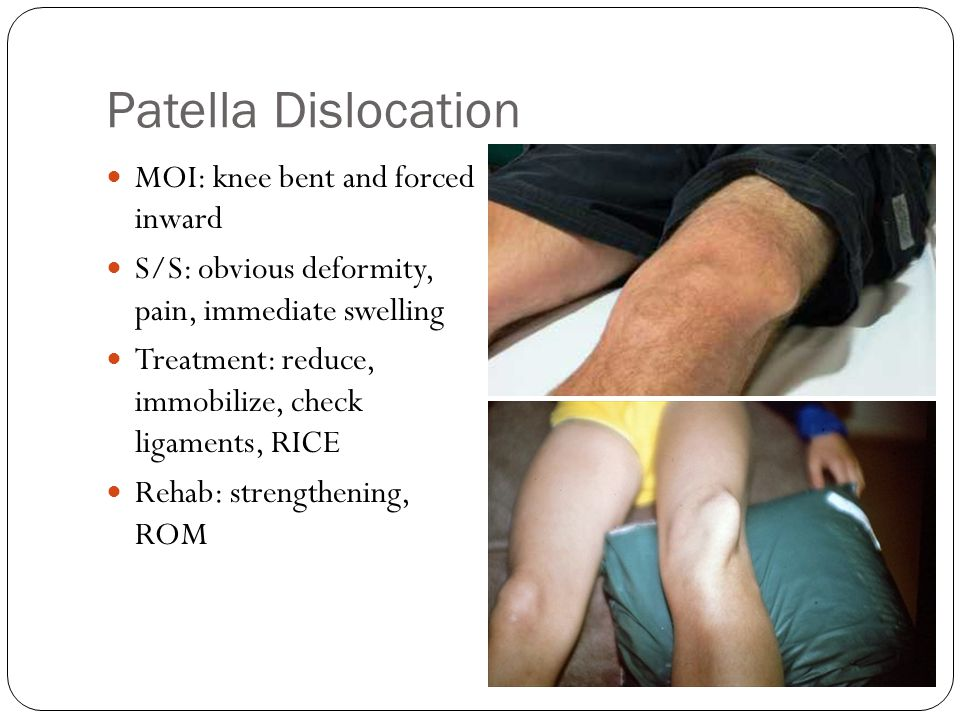 Patella Dislocation MOI: knee bent and forced inward