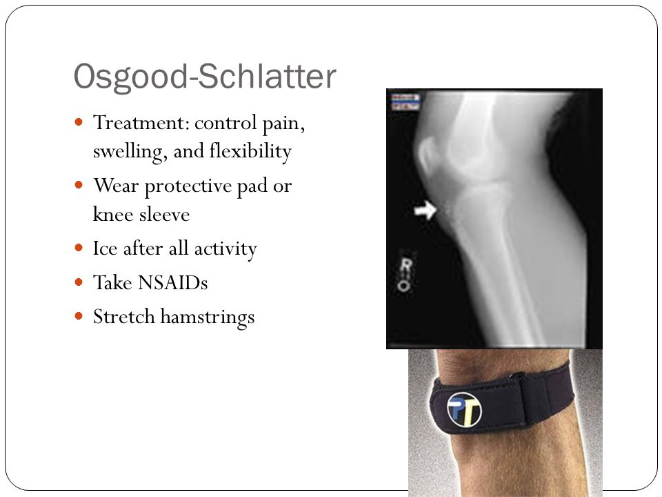 Osgood-Schlatter Treatment: control pain, swelling, and flexibility