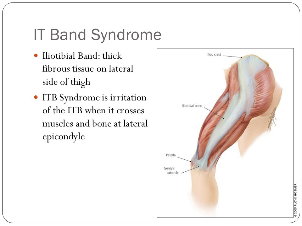 IT Band Syndrome Iliotibial Band: thick fibrous tissue on lateral side of thigh.