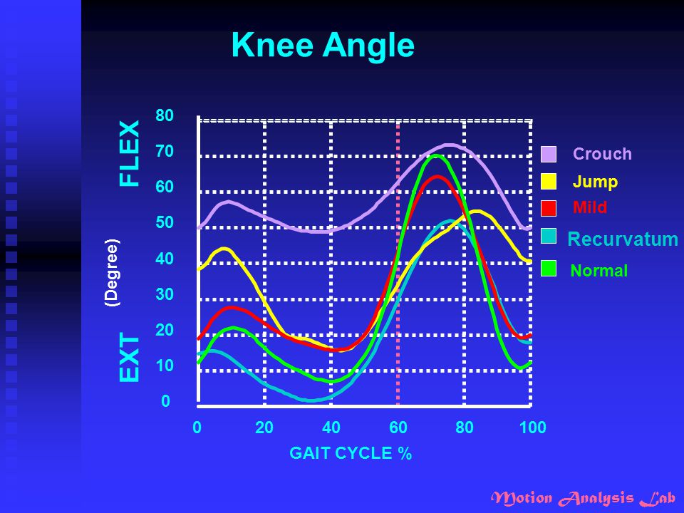 Knee Angle FLEX EXT Recurvatum GAIT CYCLE % 20 40 60 80 100 10 30 50