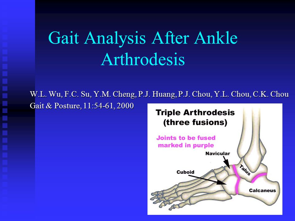 Gait Analysis After Ankle Arthrodesis