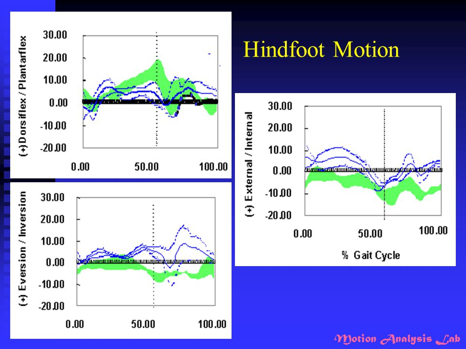 Hindfoot Motion