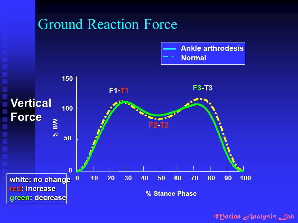 Ground Reaction Force Vertical Force Ankle arthrodesis Normal F3-T3