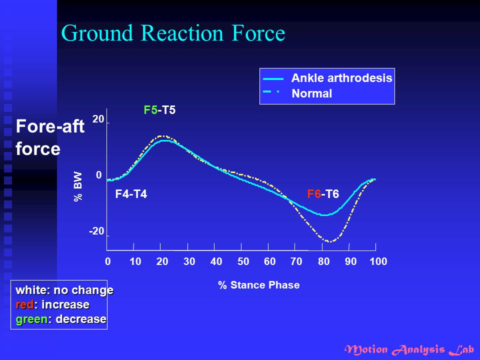 Ground Reaction Force Fore-aft force Ankle arthrodesis Normal F5-T5
