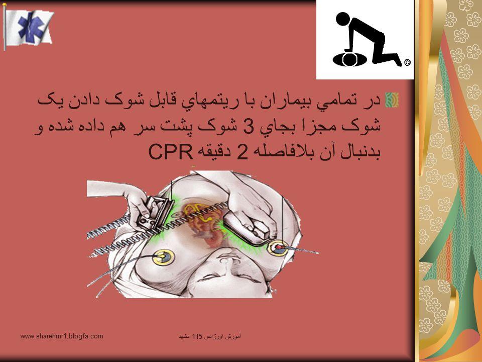 در تمامي بيماران با ريتمهاي قابل شوک دادن يک شوک مجزا بجاي 3 شوک پشت سر هم داده شده و بدنبال آن بلافاصله 2 دقيقه CPR