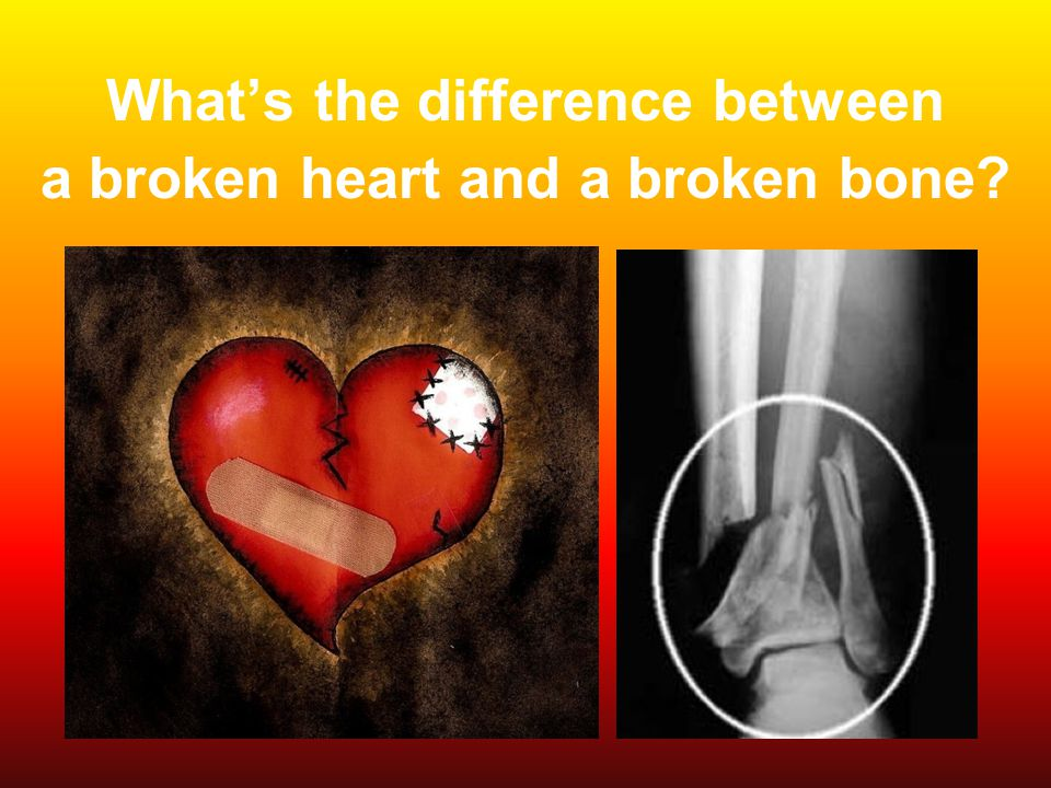 What's the difference between a broken heart and a broken bone