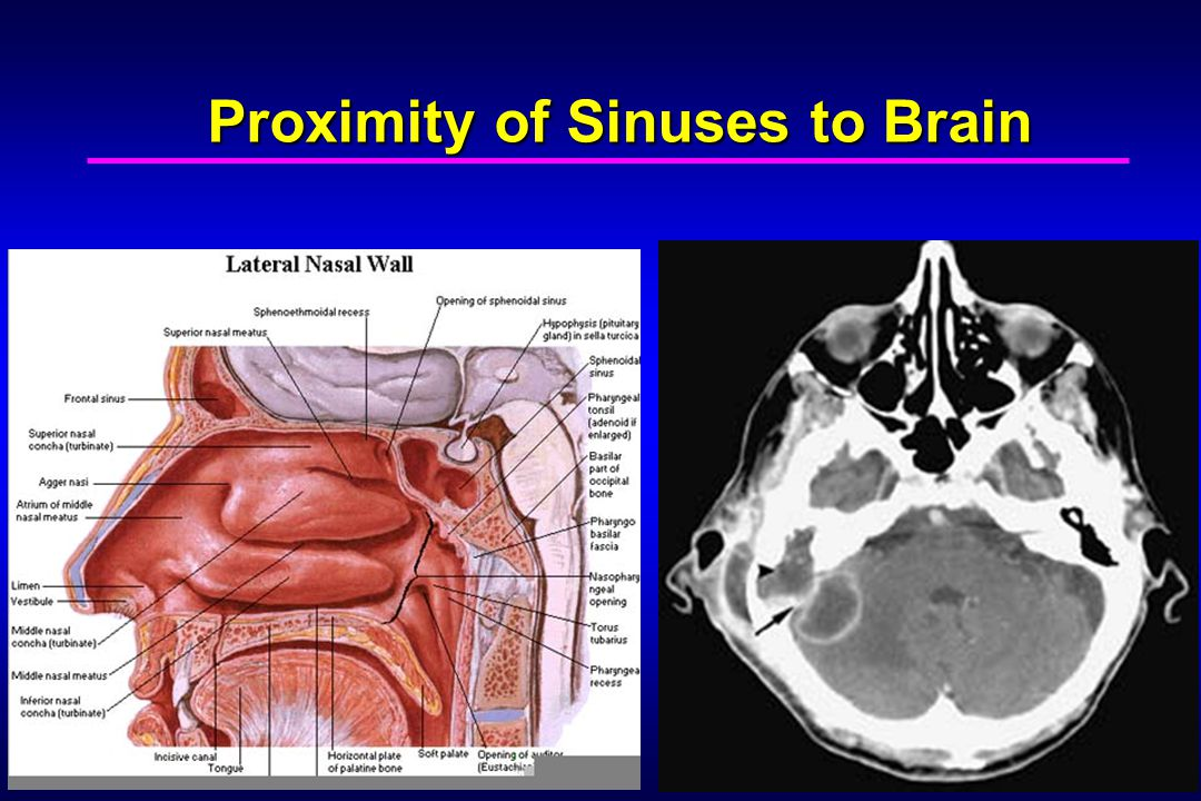 Proximity of Sinuses to Brain