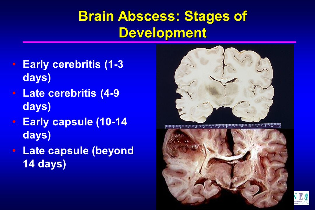 Brain Abscess: Stages of Development