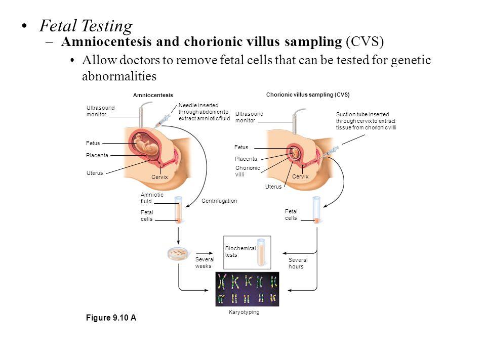 Fetal Testing Amniocentesis and chorionic villus sampling (CVS)