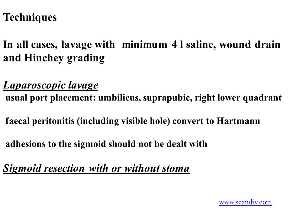 Sigmoid resection with or without stoma