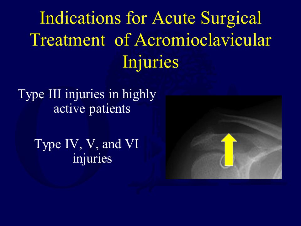 Indications for Acute Surgical Treatment of Acromioclavicular Injuries