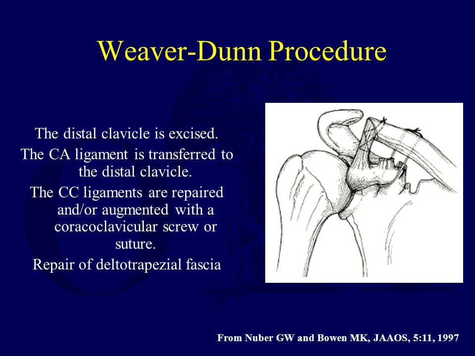 Weaver-Dunn Procedure