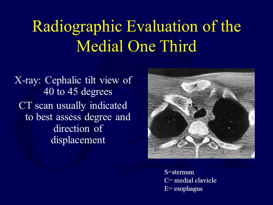 Radiographic Evaluation of the Medial One Third